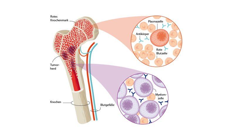 Querschnitt mit Sicht auf Knochenmark und Tumorherd
