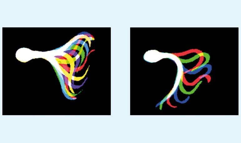 Schlagmuster des Schwanzes ein- und desselben Spermiums