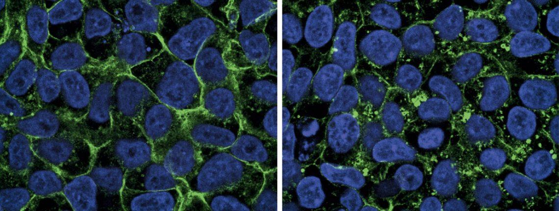Unter dem Mikroskop sind links die Zellen eines gesunden Menschen zu sehen und rechts die von Macie. Sie leidet unter dem GLUT1-Defizit-Syndrom. Die Zuckertransporter (GLUT1) fluoreszieren grün. Bei gesunden Menschen befinden sie sich in den Zellhüllen (blau: Zellkern). In Macies Fall ist nur ein Teil der Transporter in diesen Membranen. Der Zuckertransport ist daher stark beeinträchtigt